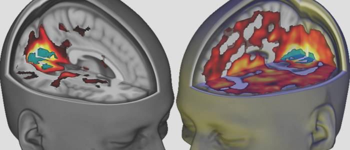 Natalie Jonk Case Study LSD the Brain